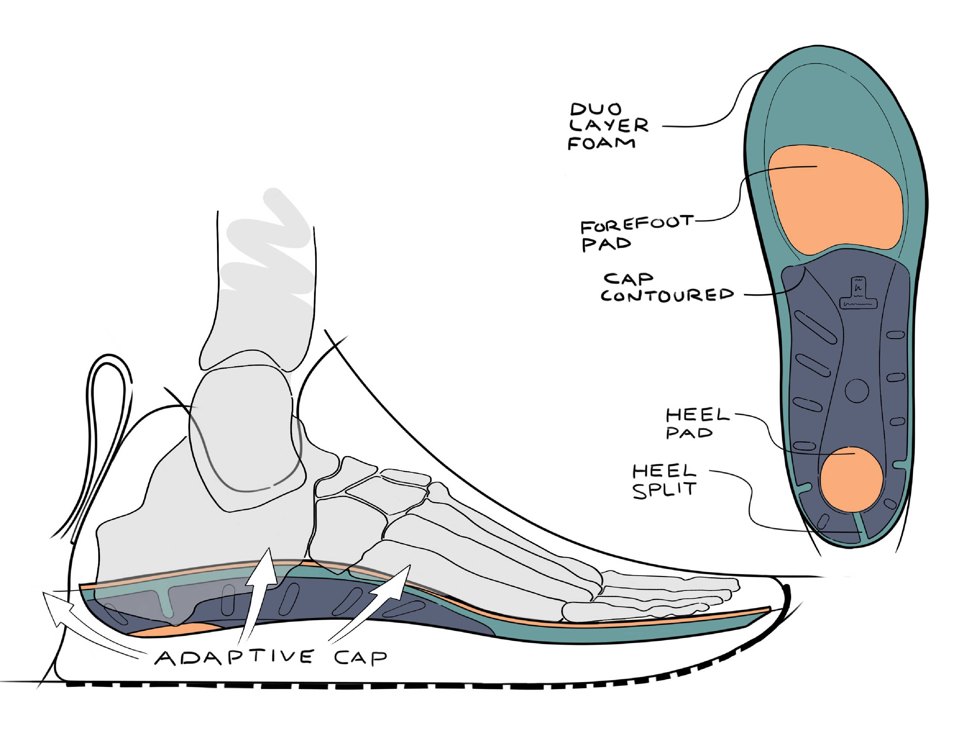 A view of the bottom features of this new insole and a sketch of how it fits the foot