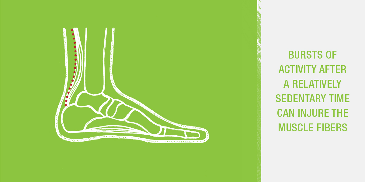 Bursts of activity after a relatively sedentary time can injure muscle fibers and lead to Achilles tendonitis