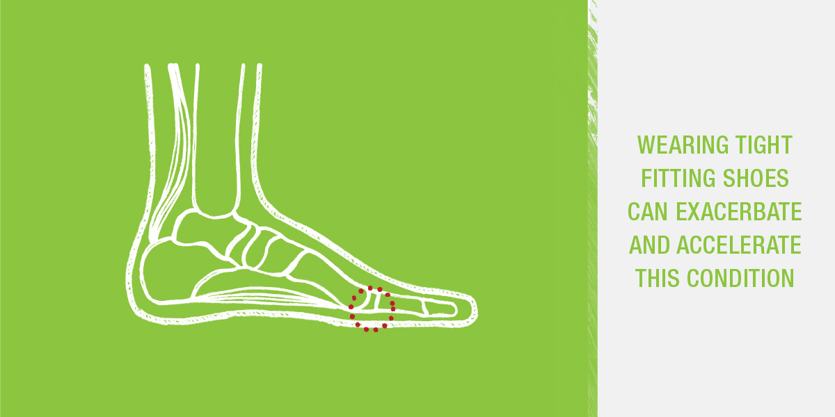 Wearing tight fighting shoes can exacerbate and accelerate bunions