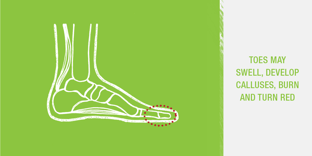Hammer toes may swell, develop calluses, burn and turn red.