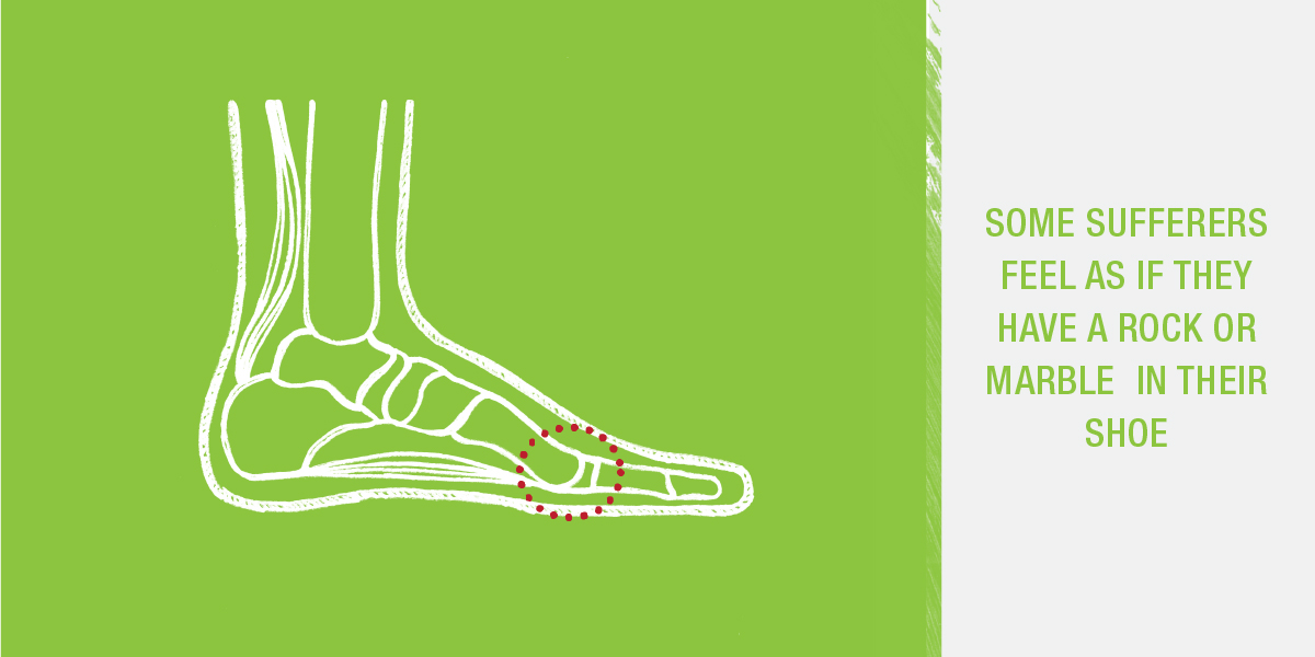 Some sufferers of Morton's neuroma feel like they have a marble in their shoe