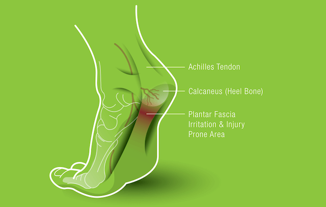 The plantar fascia can be an irritation and injury prone area